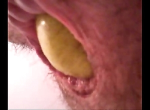 Pear round dudes aggravation